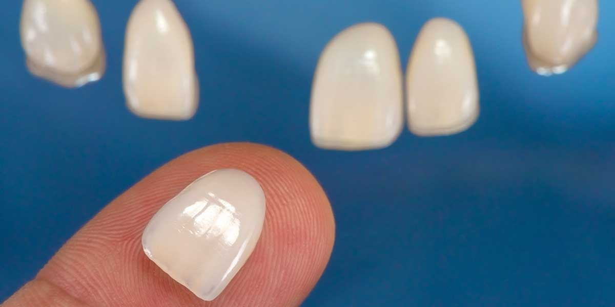 Closeup of Porcelain Veneers